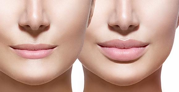 medycyna estetyczna- usta